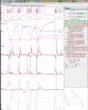 telemetry_panel_v30_500x620.png